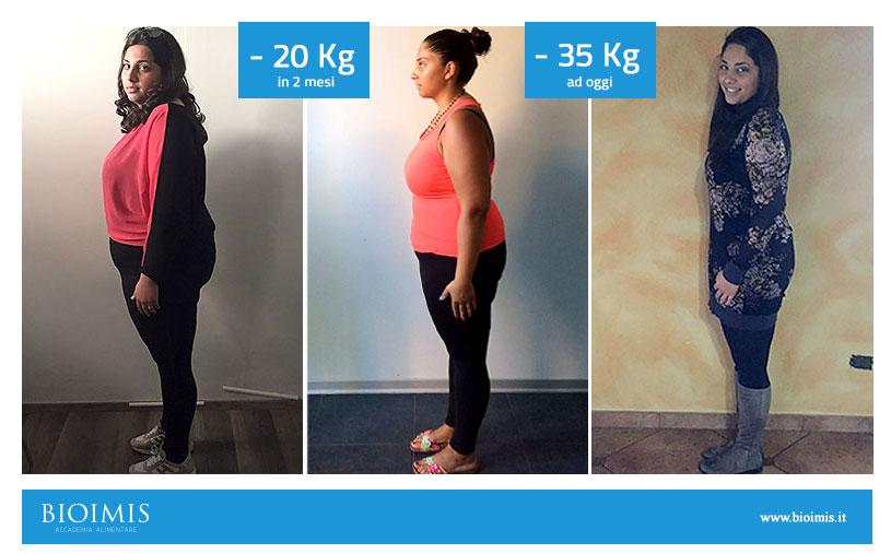 20 kg di perdita di peso in due mesi
